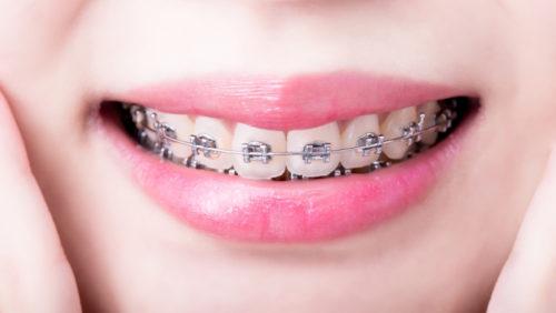 Jak działają aparaty ortodontyczne?