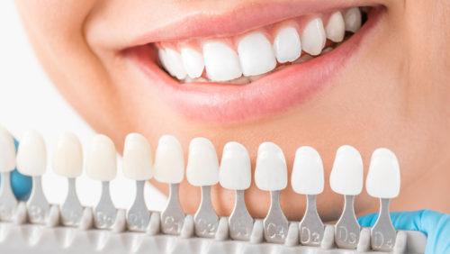 Planujesz wybielanie zębów? Zrób to w profesjonalnym gabinecie stomatologicznym